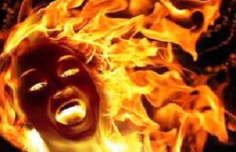 حيث رفضته زوجا، أشعل النار في جسدها