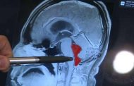 دُودة في دماغ رجل لمدة 10 سنوات بسبب تناوله وجبة من لحم الخنزير